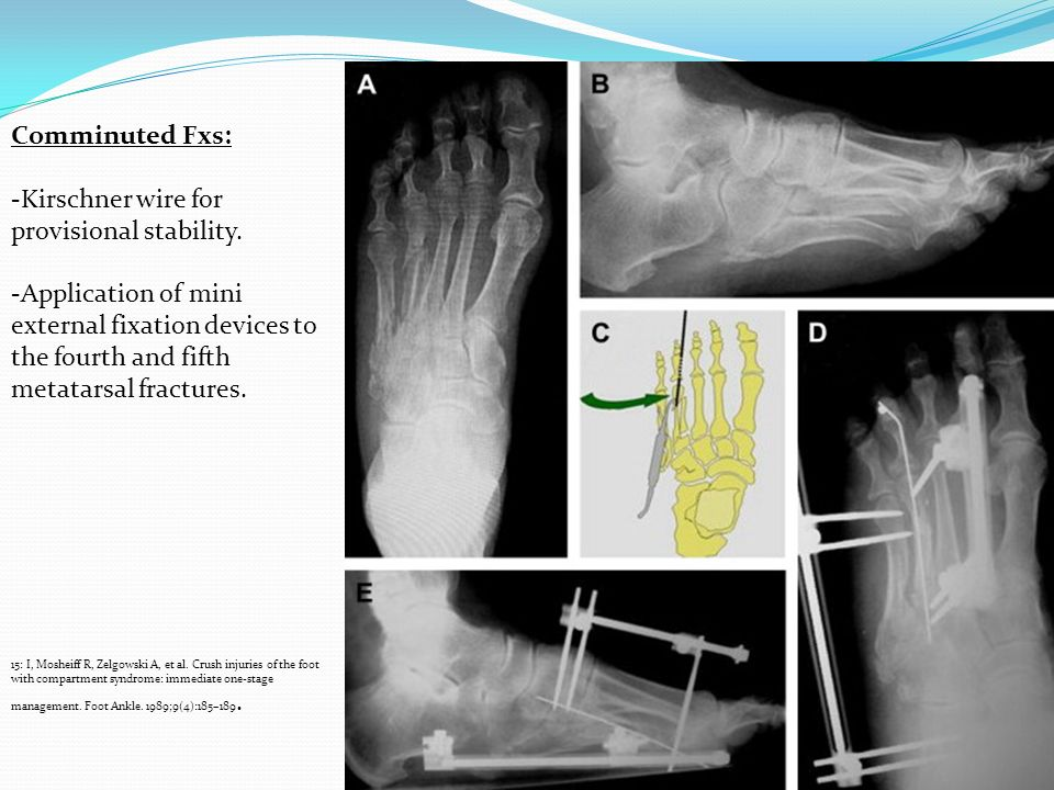 Comminuted Fxs: -Kirschner wire for provisional stability. -Application of mini external fixation devices to the fourth and fifth metatarsal fractures