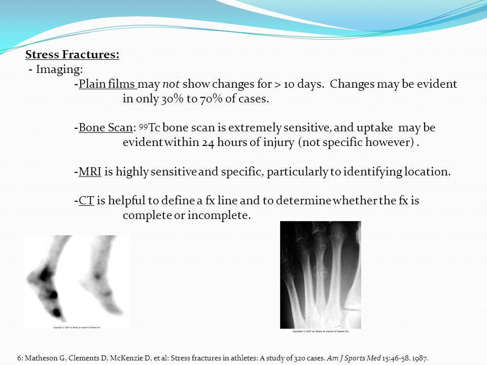 Stress Fractures: - Imaging: -Plain films may not show changes for > 10 days. Changes may be evident in only 30% to 70% of cases. -Bone Scan: 99 Tc bo