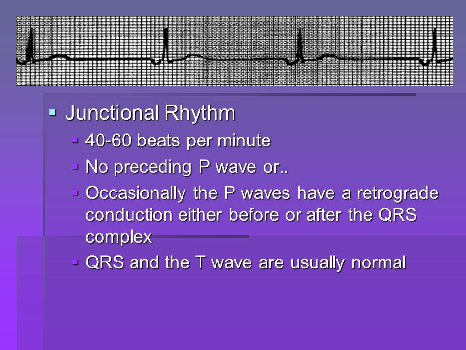 Junctional Rhythm Junctional Rhythm 40-60 beats per minute 40-60 beats per minute No preceding P wave or.. No preceding P wave or.. Occasionally the P