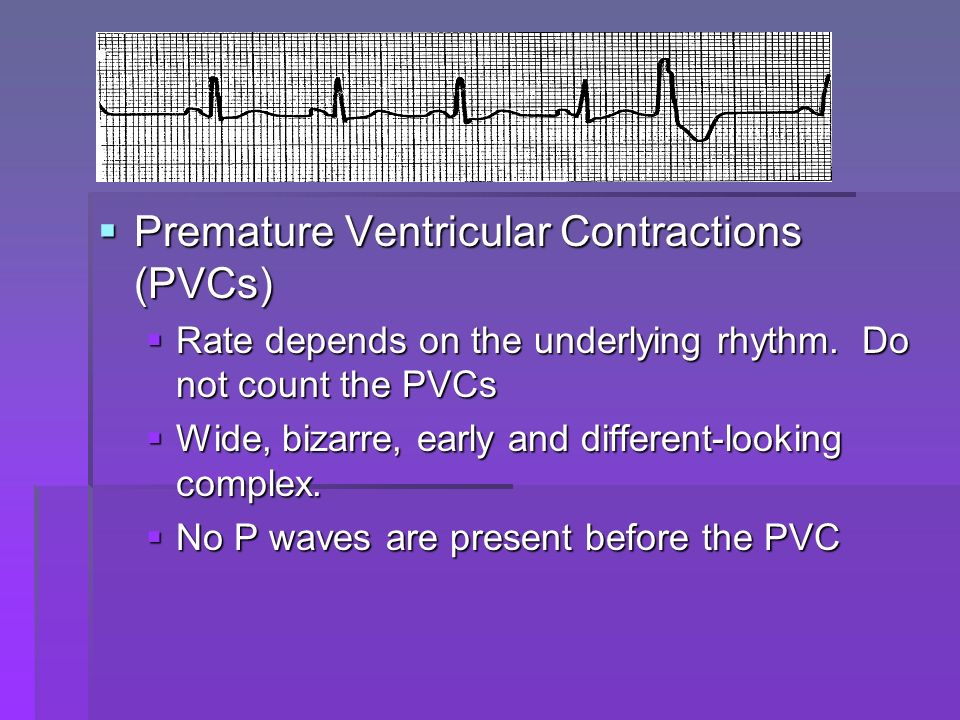 Premature Ventricular Contractions (PVCs) Premature Ventricular Contractions (PVCs) Rate depends on the underlying rhythm. Do not count the PVCs Rate