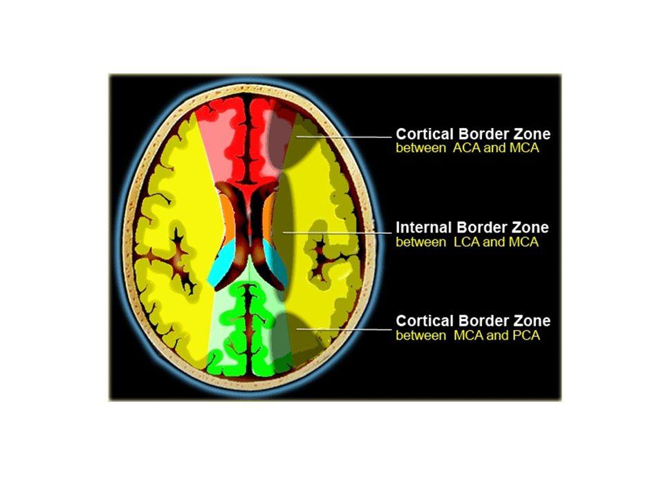 CE Question 2 Subcortical hyperintensities (SH) represent a hallmark feature of subcortical vascular dementia.