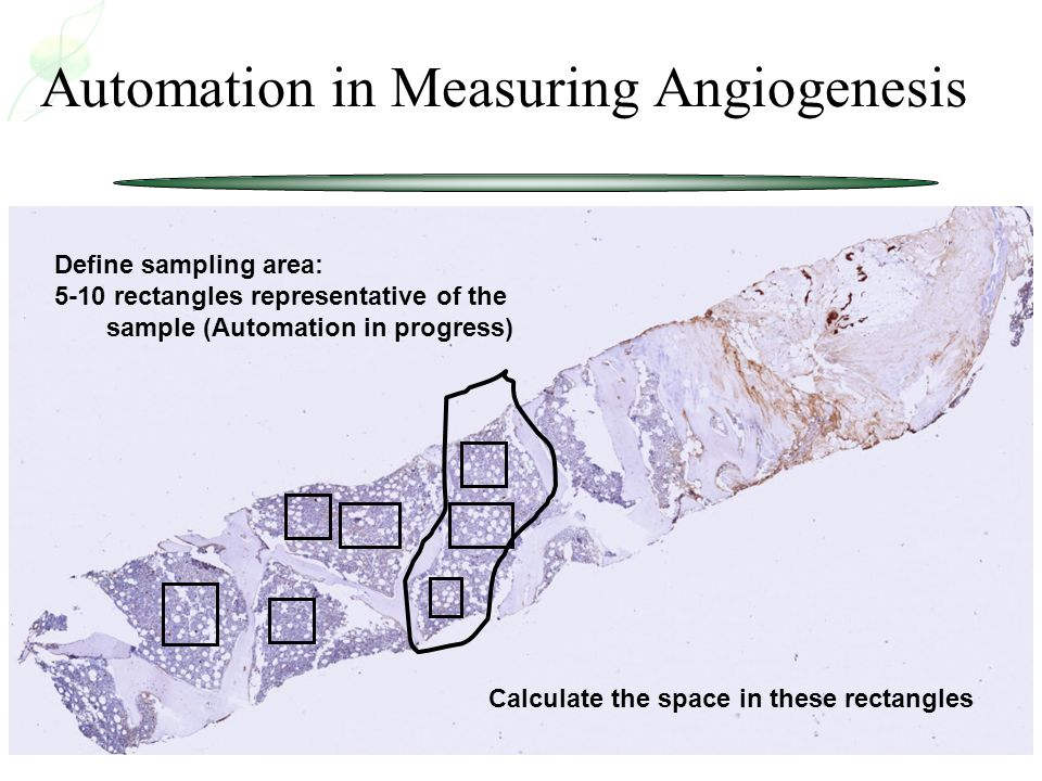 Define sampling area: 5-10 rectangles representative of the sample (Automation in progress) Automation in Measuring Angiogenesis Calculate the space i