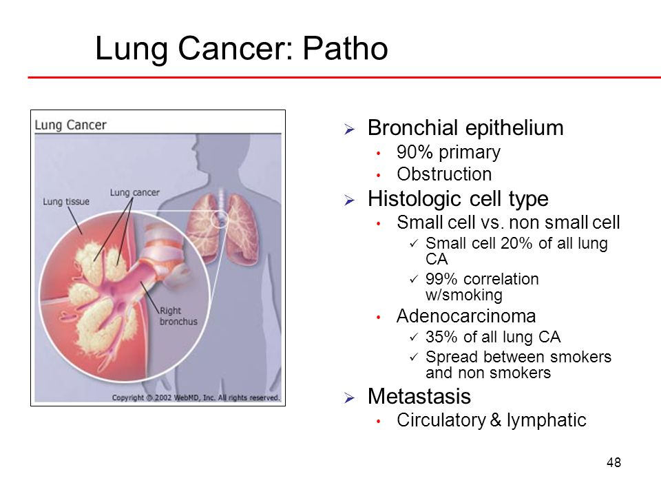 48 Lung Cancer: Patho Bronchial epithelium 90% primary Obstruction Histologic cell type Small cell vs. non small cell Small cell 20% of all lung CA 99