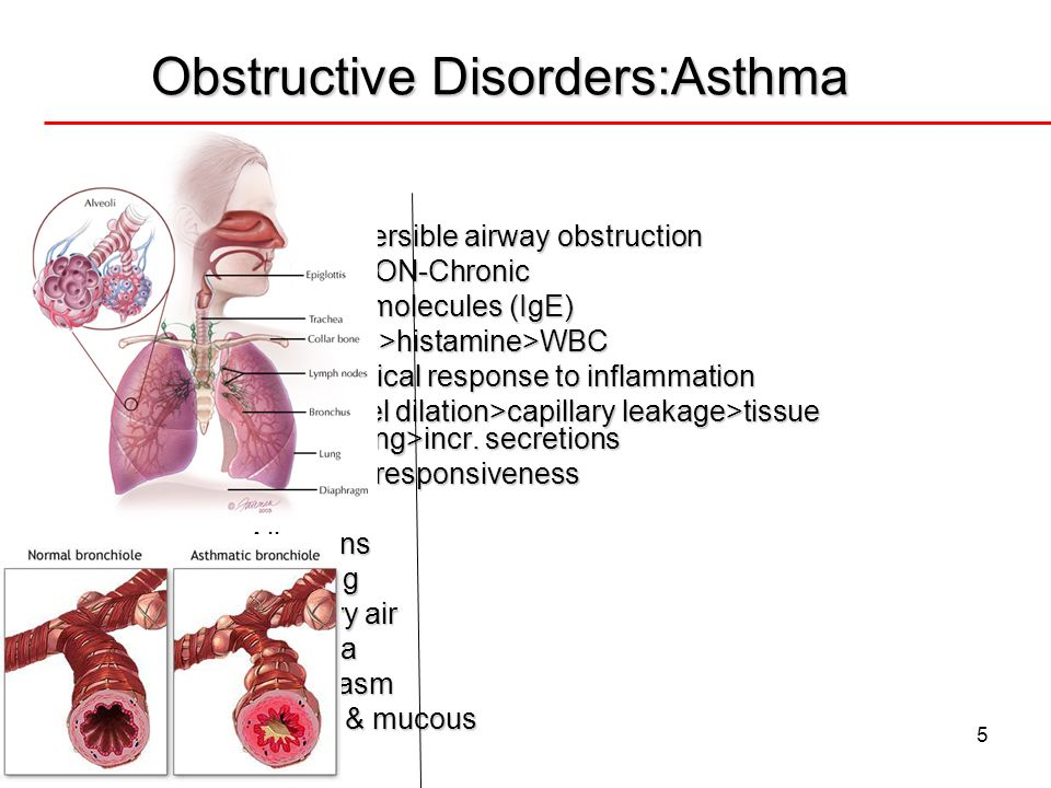 5 Obstructive Disorders:Asthma Patho Patho Intermittent & reversible airway obstruction Intermittent & reversible airway obstruction INFLAMMATION-Chro