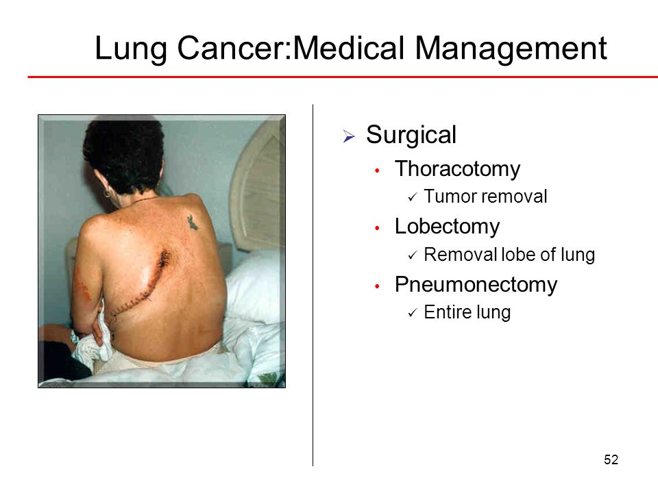 52 Lung Cancer:Medical Management Surgical Thoracotomy Tumor removal Lobectomy Removal lobe of lung Pneumonectomy Entire lung