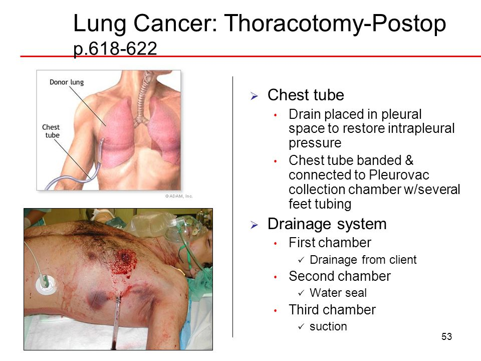 53 Lung Cancer: Thoracotomy-Postop p.618-622 Chest tube Drain placed in pleural space to restore intrapleural pressure Chest tube banded & connected t