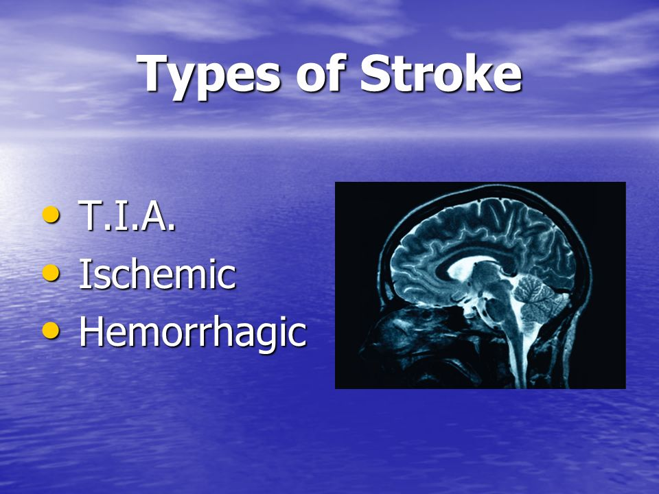 Brain Attack.Stroke is a Brain Attack. Stroke is a Brain Attack.