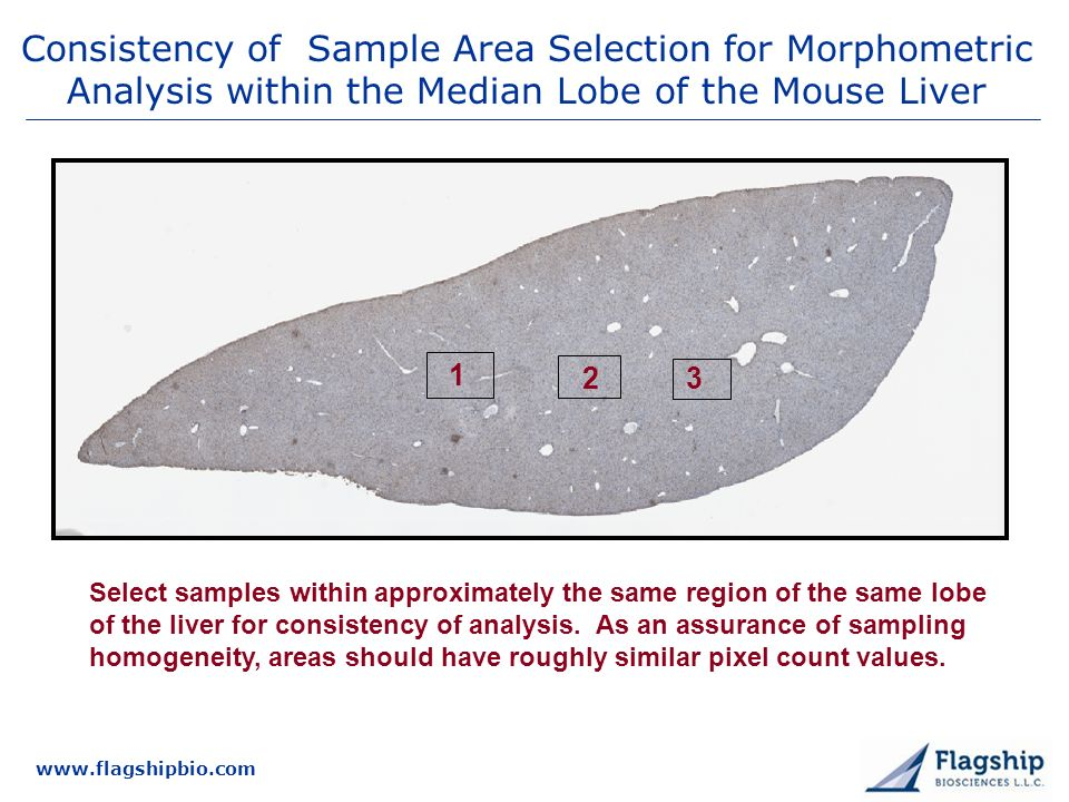 www.flagshipbio.com Consistency of Sample Area Selection for Morphometric Analysis within the Median Lobe of the Mouse Liver 1 2 3 Select samples within approximately the same region of the same lobe of the liver for consistency of analysis.