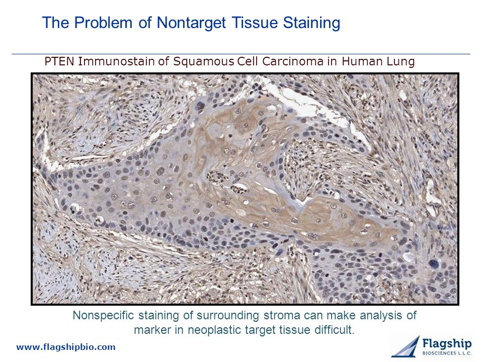 www.flagshipbio.com PTEN Immunostain of Squamous Cell Carcinoma in Human Lung Nonspecific staining of surrounding stroma can make analysis of marker in neoplastic target tissue difficult.