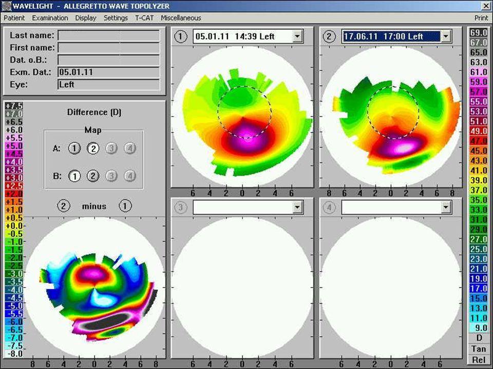 TG CXL PRK for KERATOCONUS Pre-op: -2.75-2.25x010 12 months post-op BSCVA: 20/20 - UCVA: 20/30 - RX: +0.50-0.50x020 20/30 -