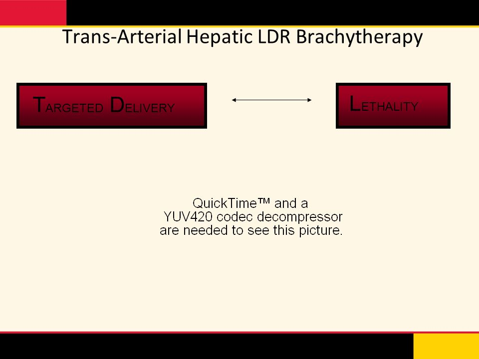 Trans-Arterial Hepatic LDR Brachytherapy T ARGETED D ELIVERY L ETHALITY