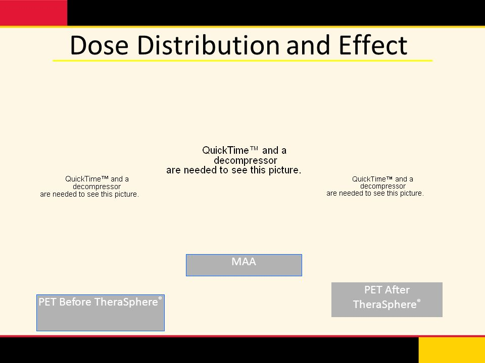 Dose Distribution and Effect PET Before TheraSphere ® PET After TheraSphere ® MAA