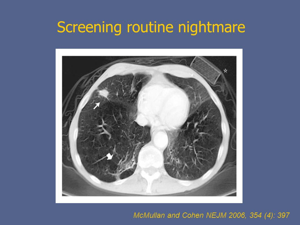 Screening routine nightmare McMullan and Cohen NEJM 2006, 354 (4): 397