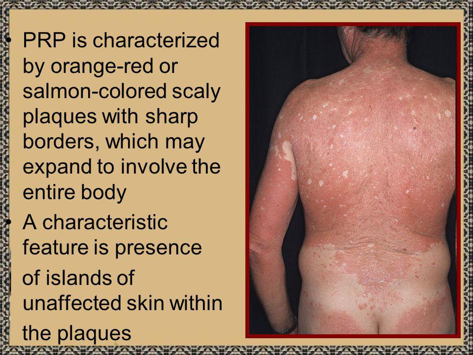 PRP is characterized by orange-red or salmon-colored scaly plaques with sharp borders, which may expand to involve the entire body A characteristic fe
