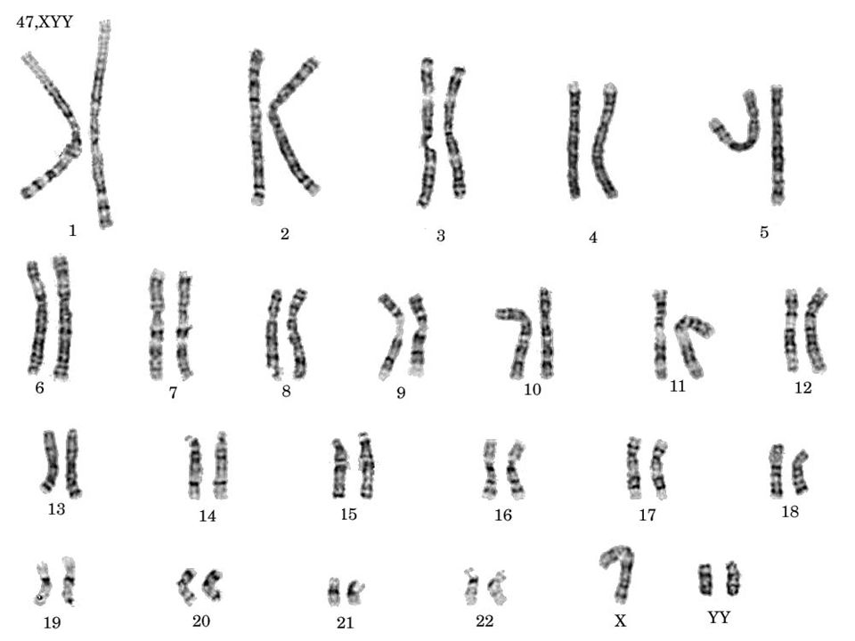 Xyy Syndrome Karyotype What is Jacobs Syndrome