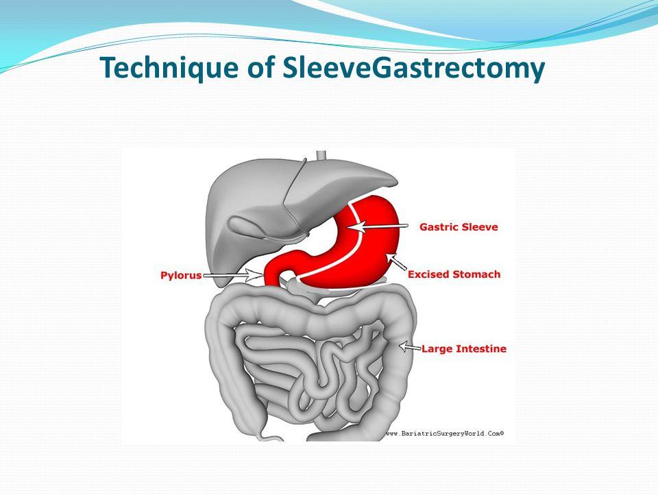 Technique of SleeveGastrectomy