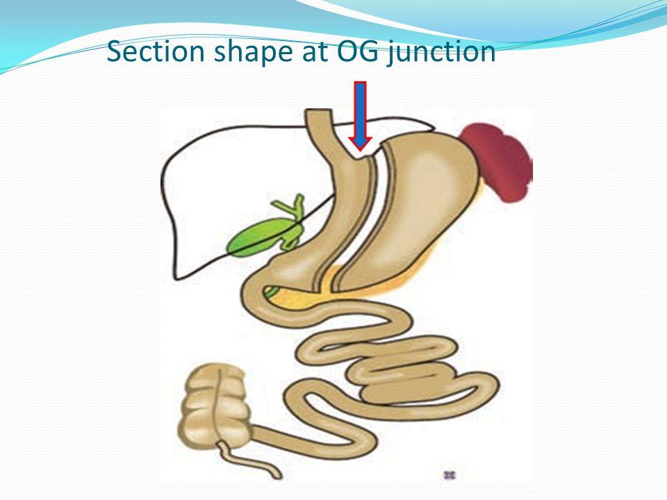 Section shape at OG junction
