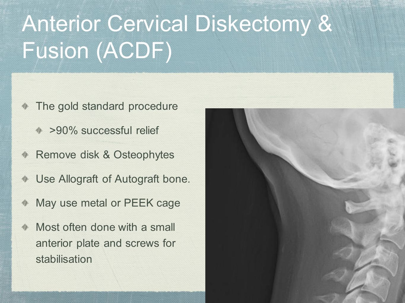 Anterior Cervical Diskectomy & Fusion (ACDF) The gold standard procedure >90% successful relief Remove disk & Osteophytes Use Allograft of Autograft b