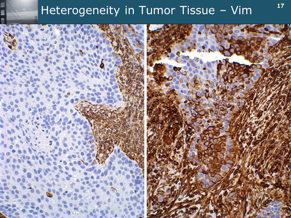 17 Heterogeneity in Tumor Tissue – Vim