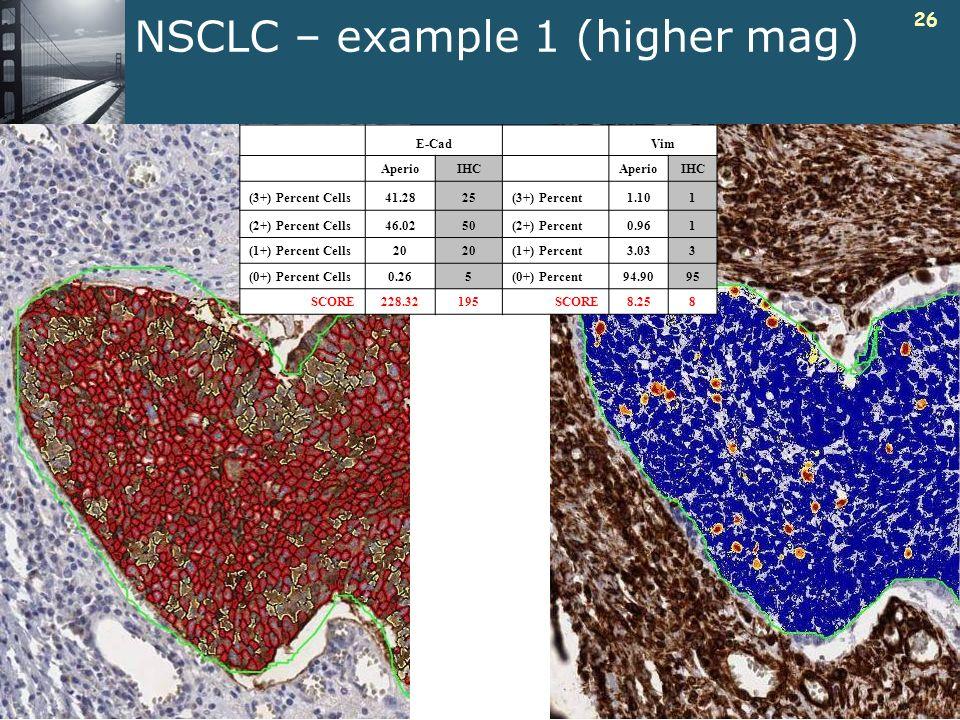 26 NSCLC – example 1 (higher mag) E-CadVim AperioIHCAperioIHC (3+) Percent Cells41.2825(3+) Percent1.101 (2+) Percent Cells46.0250(2+) Percent0.961 (1