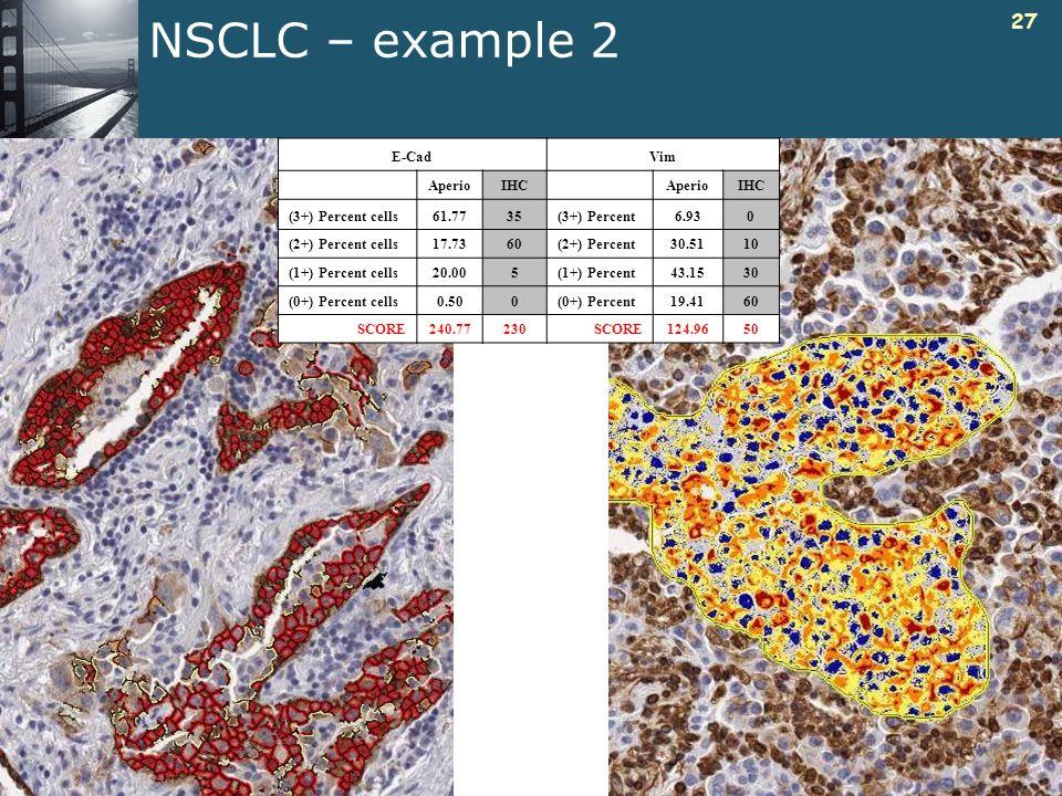 27 NSCLC – example 2 E-CadVim AperioIHCAperioIHC (3+) Percent cells61.7735(3+) Percent6.930 (2+) Percent cells17.7360(2+) Percent30.5110 (1+) Percent