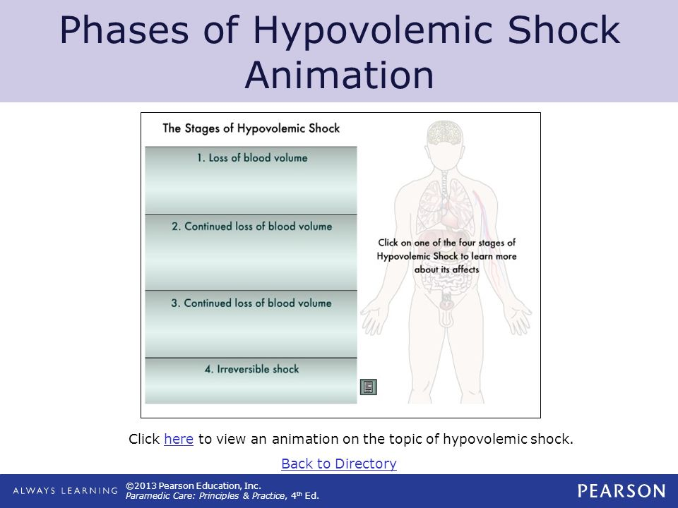 ©2013 Pearson Education, Inc. Paramedic Care: Principles & Practice, 4 th Ed. Phases of Hypovolemic Shock Animation Click here to view an animation on