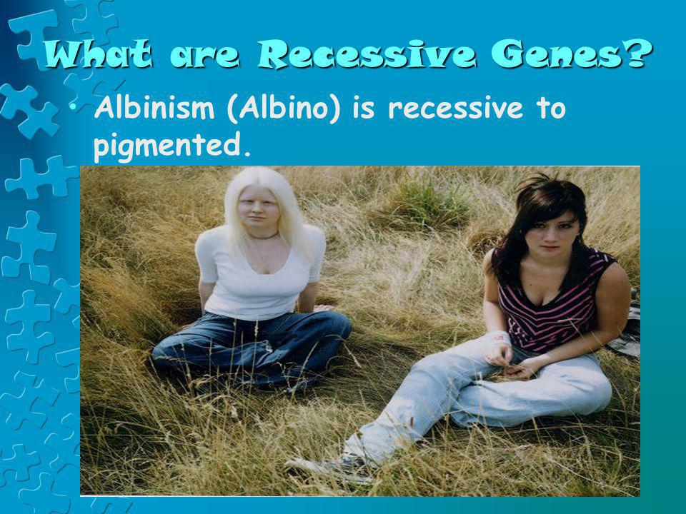 What are Recessive Genes? Albinism (Albino) is recessive to pigmented.