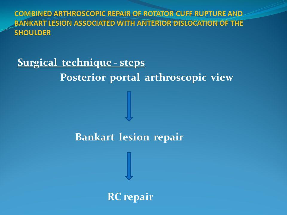 Surgical technique - steps Posterior portal arthroscopic view Bankart lesion repair RC repair