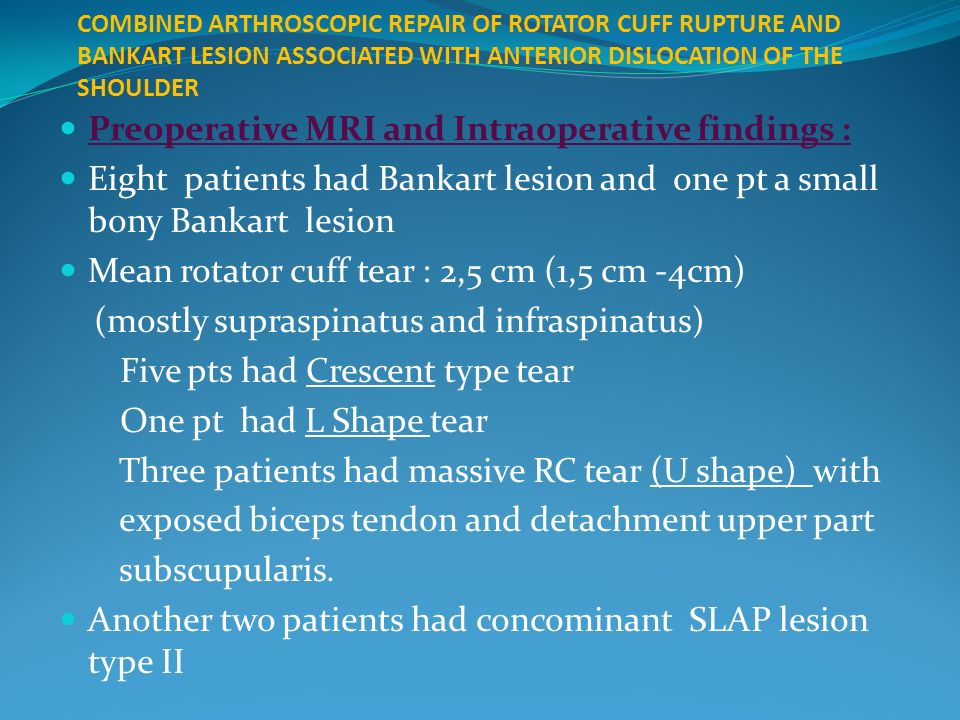 COMBINED ARTHROSCOPIC REPAIR OF ROTATOR CUFF RUPTURE AND BANKART LESION ASSOCIATED WITH ANTERIOR DISLOCATION OF THE SHOULDER Preoperative MRI and Intraoperative findings : Eight patients had Bankart lesion and one pt a small bony Bankart lesion Mean rotator cuff tear : 2,5 cm (1,5 cm -4cm) (mostly supraspinatus and infraspinatus) Five pts had Crescent type tear One pt had L Shape tear Three patients had massive RC tear (U shape) with exposed biceps tendon and detachment upper part subscupularis.