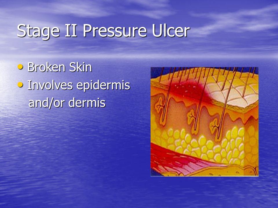 Stage II Pressure Ulcer Broken Skin Broken Skin Involves epidermis Involves epidermis and/or dermis and/or dermis