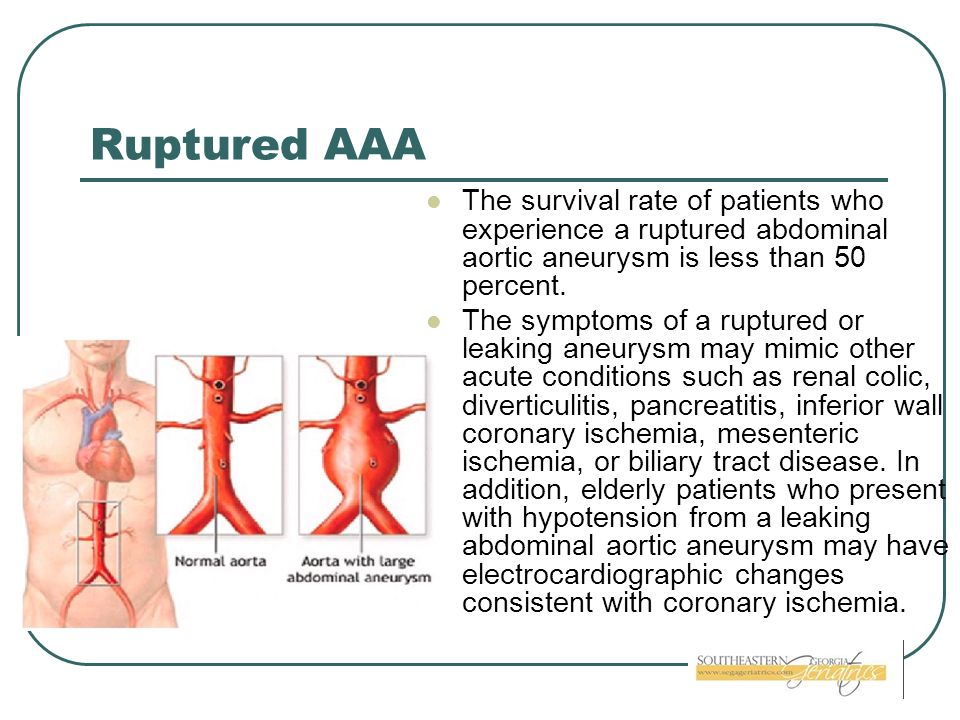 Ruptured AAA The survival rate of patients who experience a ruptured abdominal aortic aneurysm is less than 50 percent. The symptoms of a ruptured or