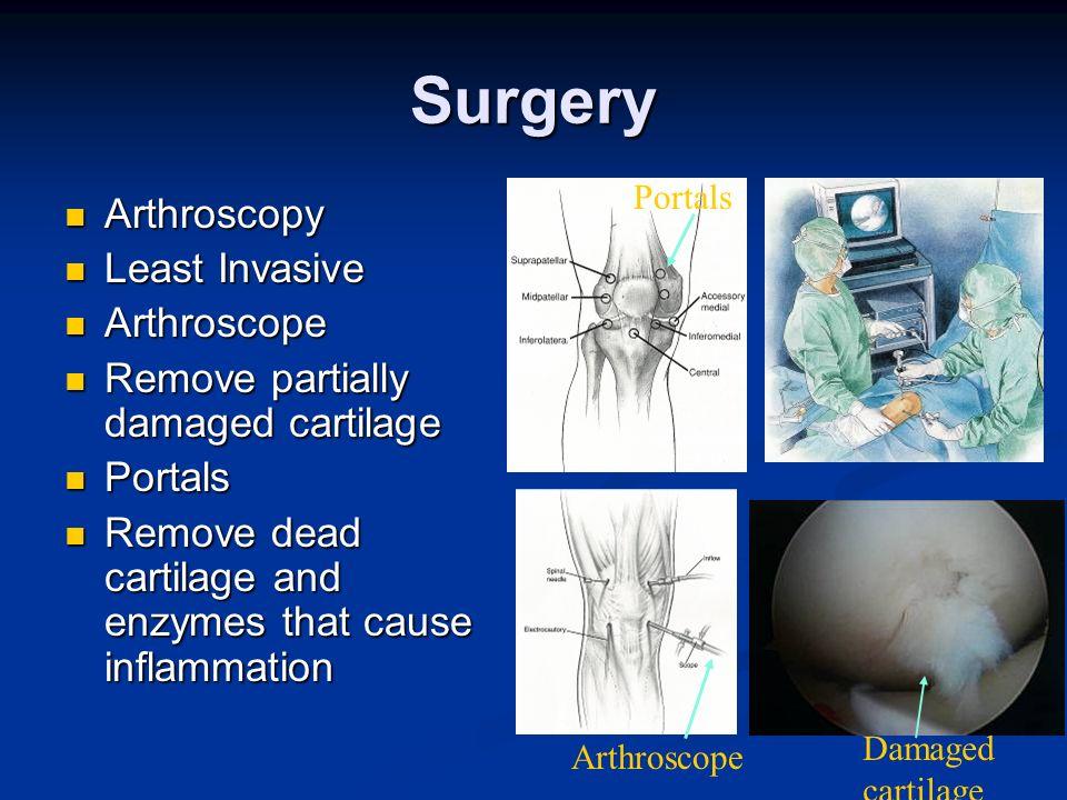 Surgery Arthroscopy Arthroscopy Least Invasive Least Invasive Arthroscope Arthroscope Remove partially damaged cartilage Remove partially damaged cart