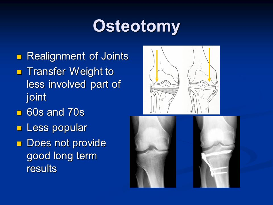 Osteotomy Realignment of Joints Realignment of Joints Transfer Weight to less involved part of joint Transfer Weight to less involved part of joint 60