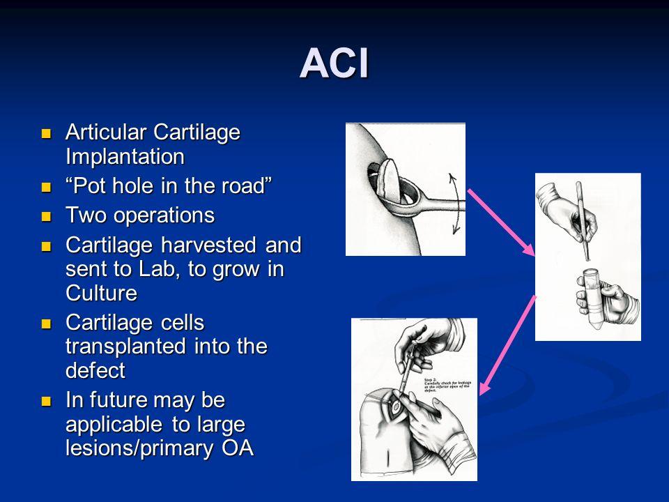 ACI Articular Cartilage Implantation Articular Cartilage Implantation Pot hole in the road Pot hole in the road Two operations Two operations Cartilag