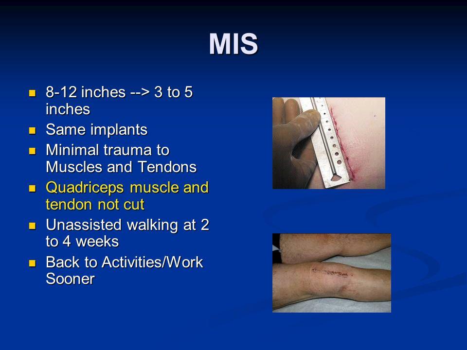 MIS 8-12 inches --> 3 to 5 inches 8-12 inches --> 3 to 5 inches Same implants Same implants Minimal trauma to Muscles and Tendons Minimal trauma to Mu