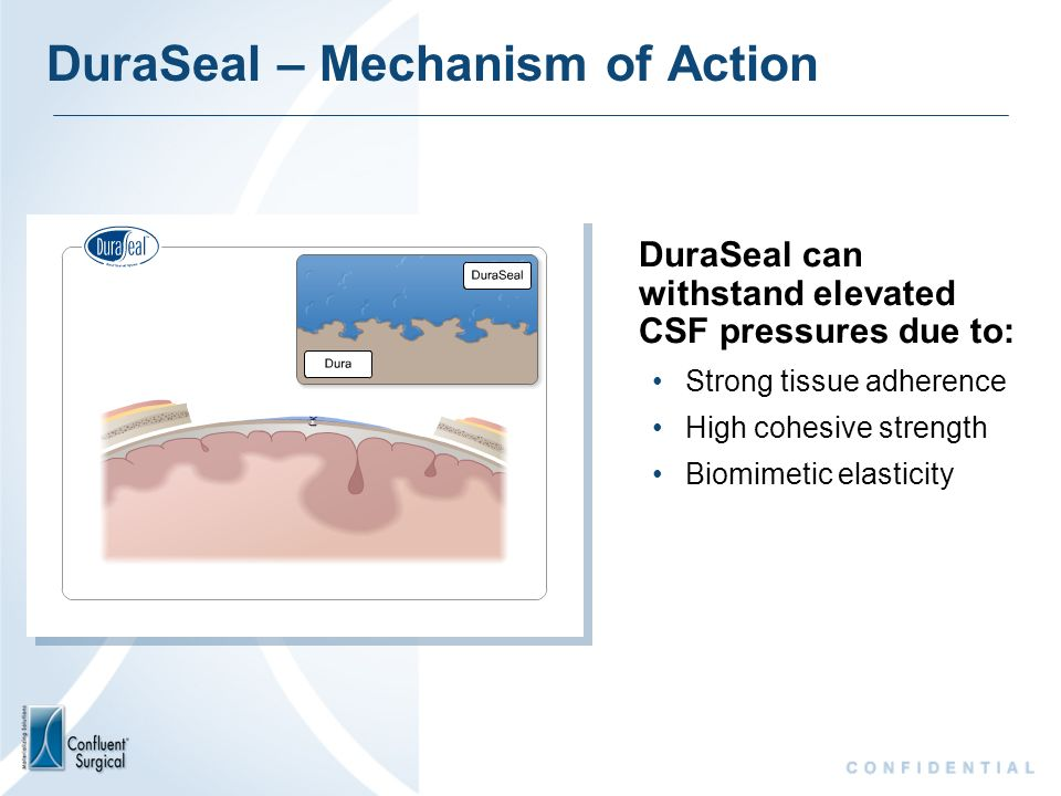 DuraSeal – Mechanism of Action DuraSeal can withstand elevated CSF pressures due to: Strong tissue adherence High cohesive strength Biomimetic elastic