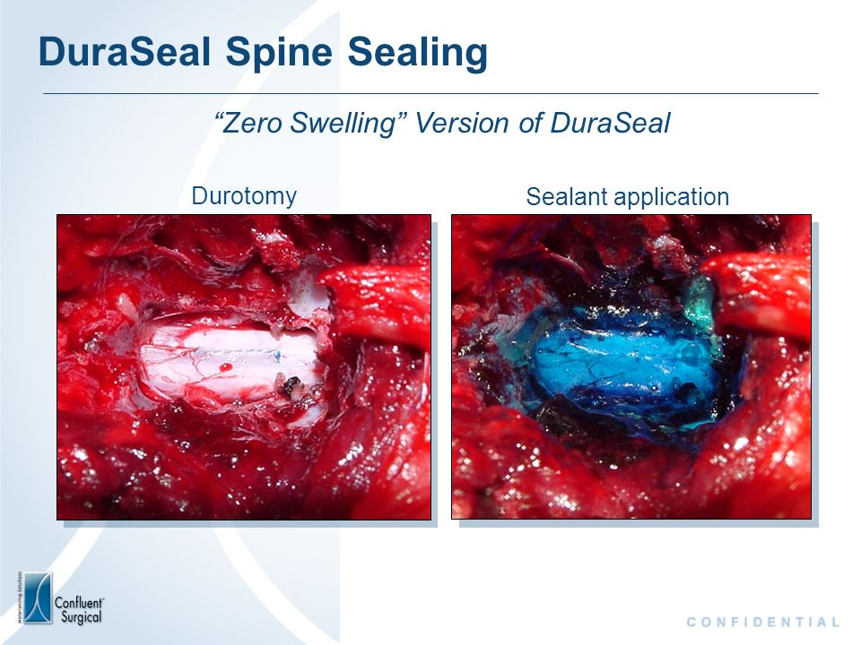 Durotomy Sealant application Zero Swelling Version of DuraSeal DuraSeal Spine Sealing