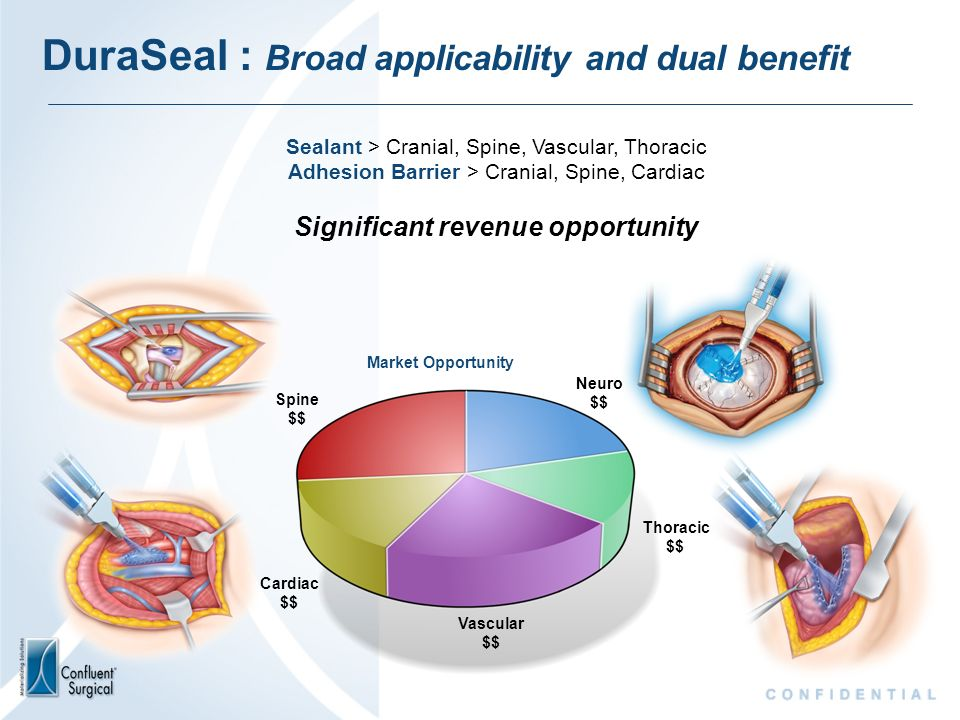 DuraSeal : Broad applicability and dual benefit Sealant > Cranial, Spine, Vascular, Thoracic Adhesion Barrier > Cranial, Spine, Cardiac Significant re