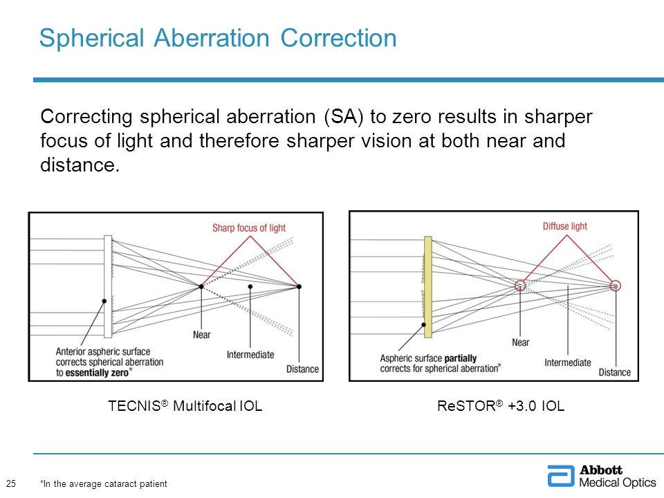 Spherical Aberration Correction Correcting spherical aberration (SA) to zero results in sharper focus of light and therefore sharper vision at both ne
