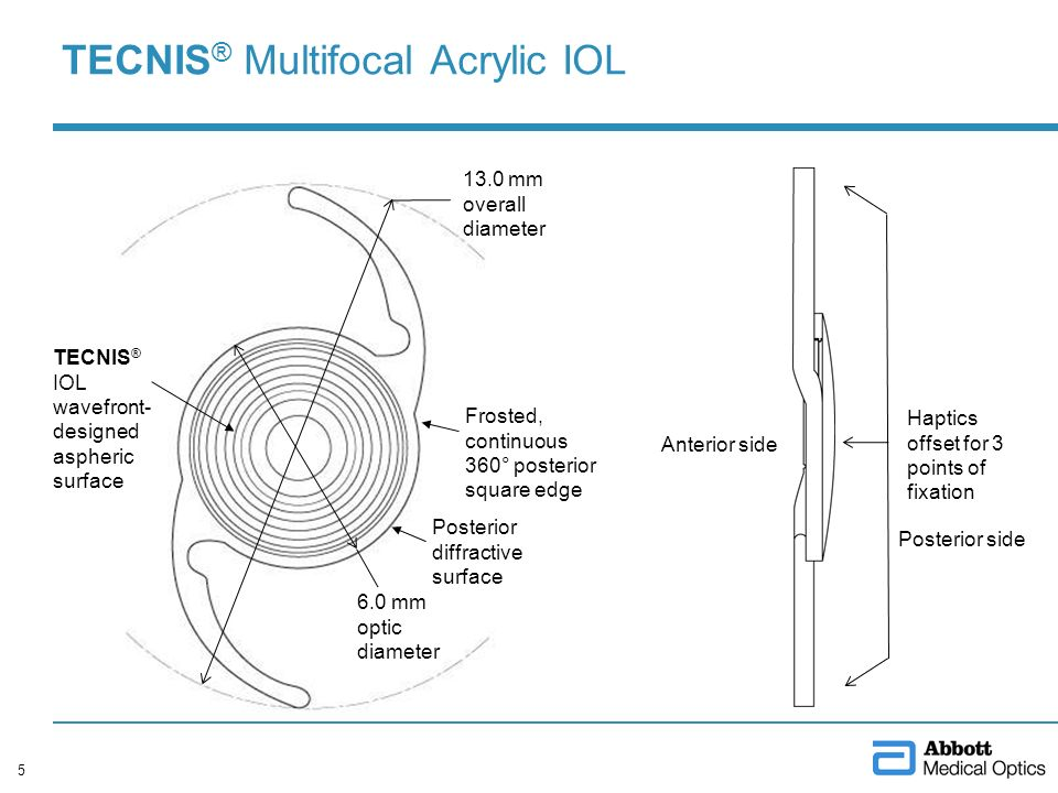 TECNIS ® Multifocal Acrylic IOL 5 Posterior side Anterior side Haptics offset for 3 points of fixation 13.0 mm overall diameter Posterior diffractive