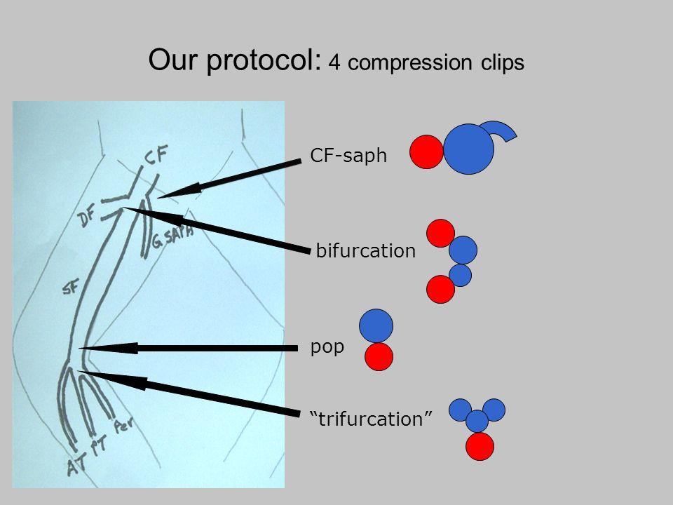 Our protocol: 4 compression clips CF-saph bifurcation pop trifurcation