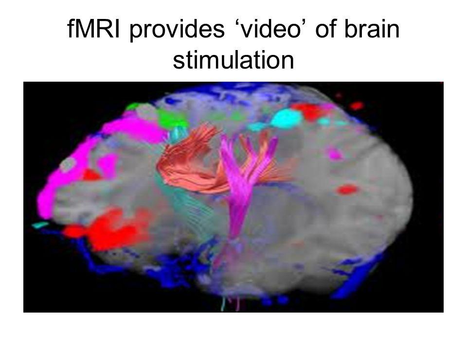 fMRI provides video of brain stimulation