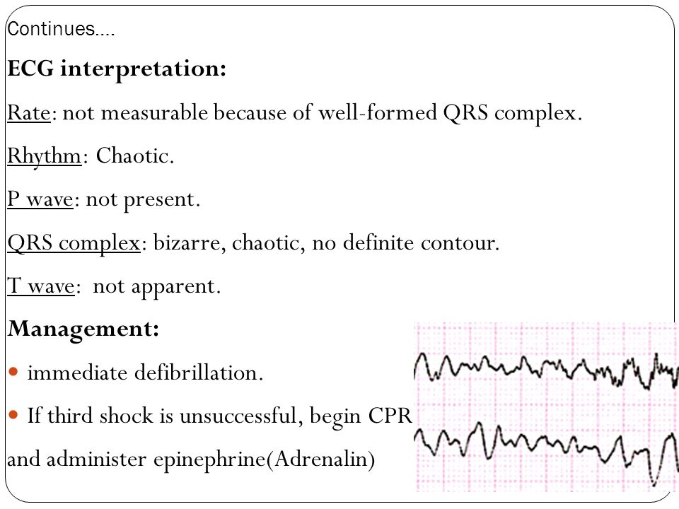 Continues…. ECG interpretation: Rate: not measurable because of well-formed QRS complex. Rhythm: Chaotic. P wave: not present. QRS complex: bizarre, c