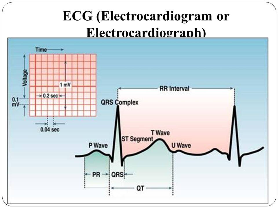 ECG (Electrocardiogram or Electrocardiograph)