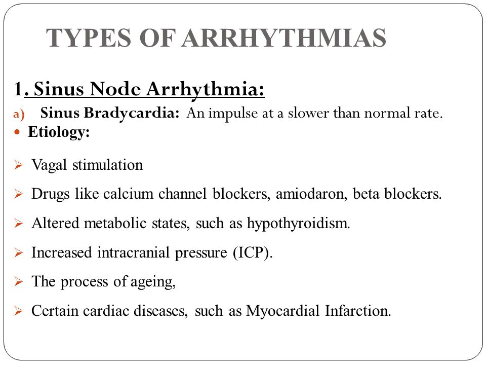 TYPES OF ARRHYTHMIAS 1. Sinus Node Arrhythmia: a) Sinus Bradycardia: An impulse at a slower than normal rate. Etiology: Vagal stimulation Drugs like c