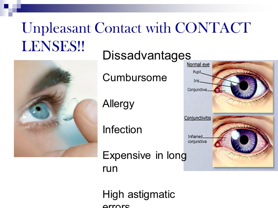 Unpleasant Contact with CONTACT LENSES!! Disadvant Dissadvantages Cumbursome Allergy Infection Expensive in long run High astigmatic errors