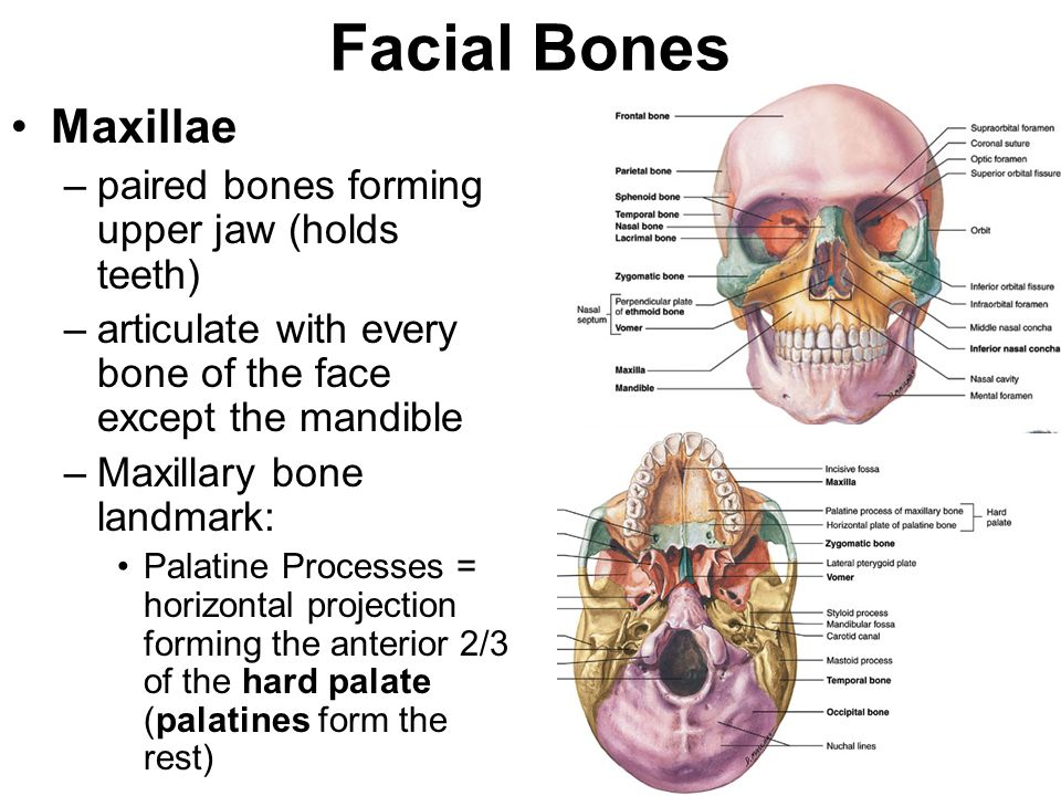 12 Facial Bones Zygomatic bones –cheek bones –form the floor & outer walls of the orbits –Zygomatic bone landmarks: Temporal processes Zygomatic arche