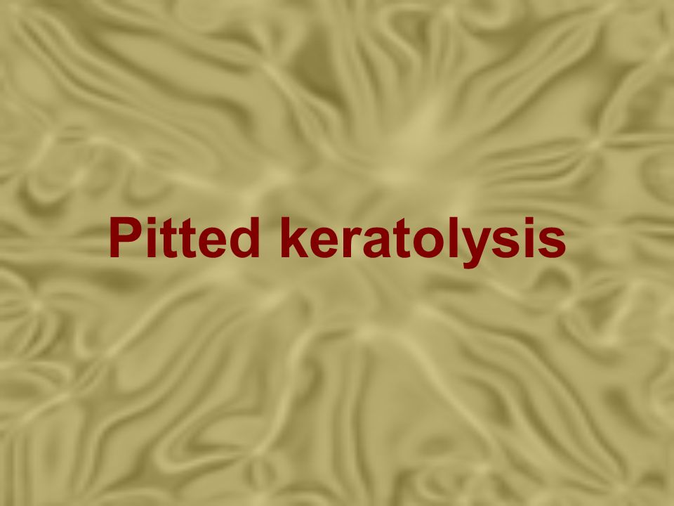 Pitted keratolysis