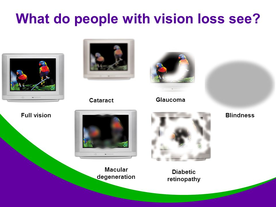 Blindness What do people with vision loss see.