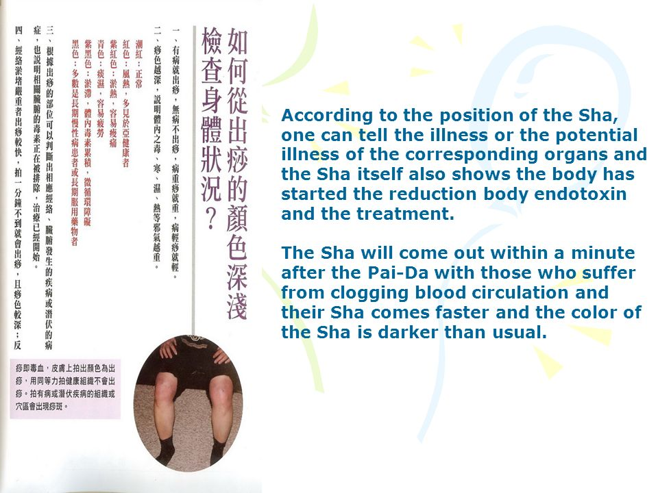According to the position of the Sha, one can tell the illness or the potential illness of the corresponding organs and the Sha itself also shows the